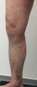 casos reais de Tratamento de varizes - clinica de cirurgia vascular no porto - tratamento de varizes e derrames - 01D