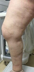 casos reais varizes - clinica de cirurgia vascular no porto - tratamento de varizes e derrames - 02D