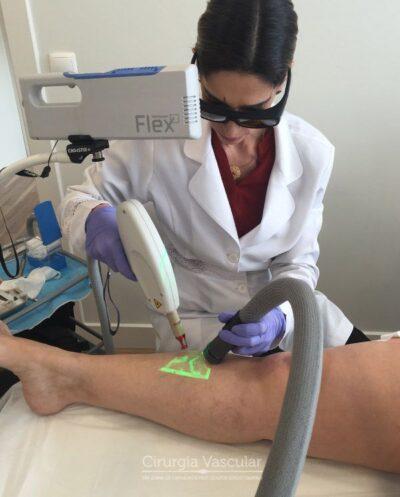 clínica de tratamento de varizes CLaCS-2 - Crio-Laser e Crio-Escleroterapia - Porto - 01